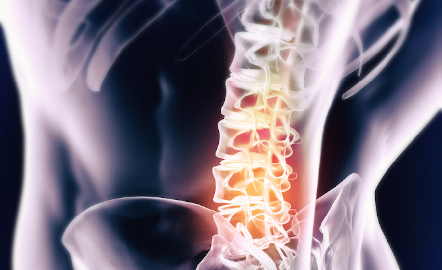 Stock Photo 47614998 Deep Spinal Inflammation